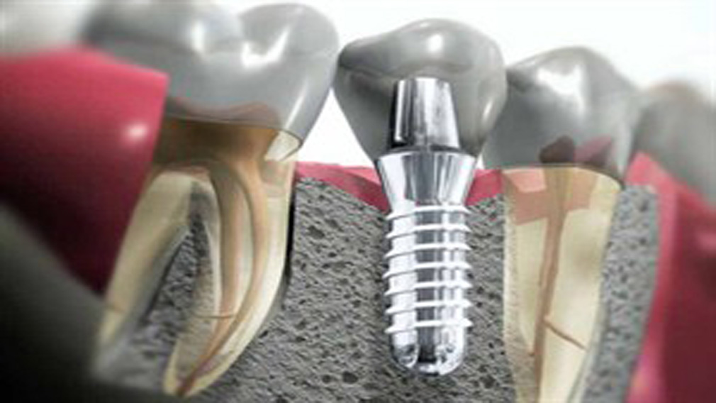 Advanced dental implantology