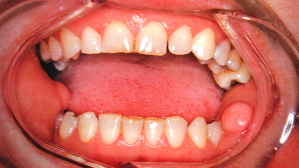 Oral pathology and oral medicine